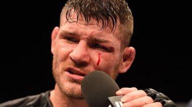 Пресконференция след UFC 199